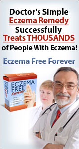 Eczema Free Forever Rachel Anderson Review
