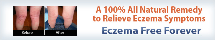 Eczema Free Forever Review Video Banner