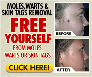 moles warts removal at home